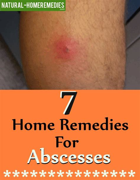7 home remedies for abscesses home remedies