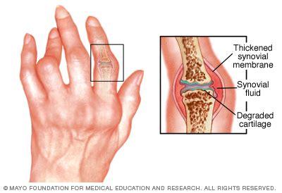 résumé definition overview rheumatoid arthritis mayo clinic