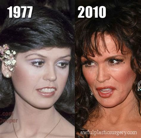 marys extreme makeover face nose and body marie osmond plastic surgery before and after botox and