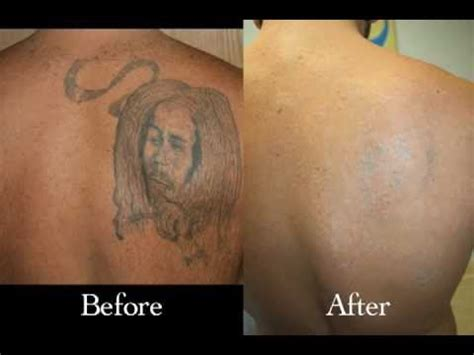tattoo removal youtube before and after removal