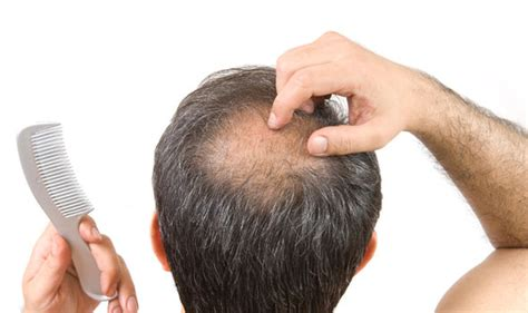 hair loss 50 years hair loss diet eating blueberries could slow down male