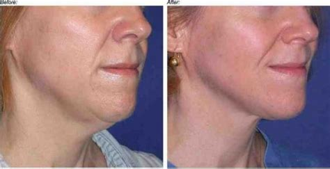 hairstyles for women with excess neck skin sagging neck skin exercises solutions surgery home
