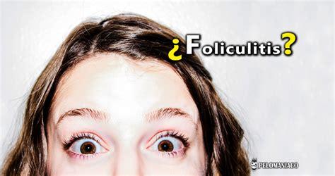 foliculitis cuero cabelludo c 243 mo curar la foliculitis en el cuero cabelludo remedios