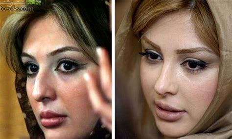 the world capital of plastic surgery the new yorker tehran the nose job capital of the world iran amongst