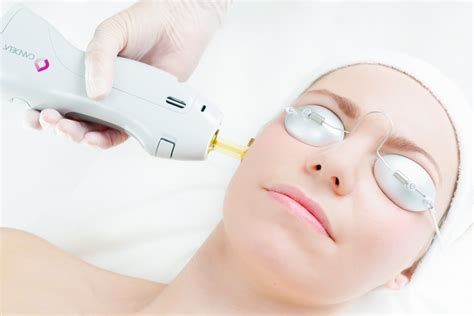 candela hair removal laser hair removal