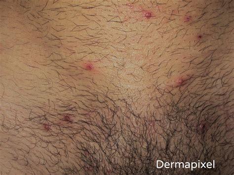 imagenes verrugas vulgares genitales verrugas genitales related keywords verrugas genitales
