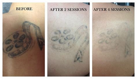 laser tattoo removal cost vancouver pics videos vancouver tattoo removal