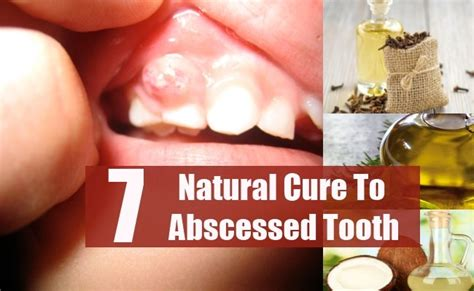 7 best effective ways to cure abscessed tooth naturally