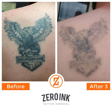 barrie tattoo removal zero ink laser removal southton