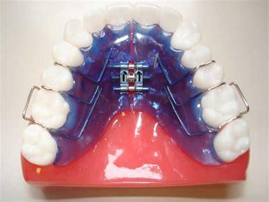 apparecchio ortodontico mobile apparecchio dentale ortodonzia dott marco dormi