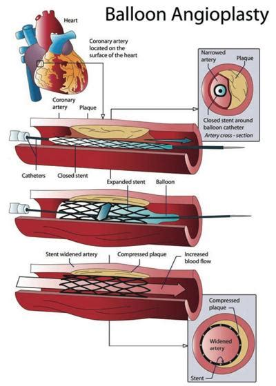 coronary angioplasty with or without stent implantation coronary angioplasty treatment for heart disease