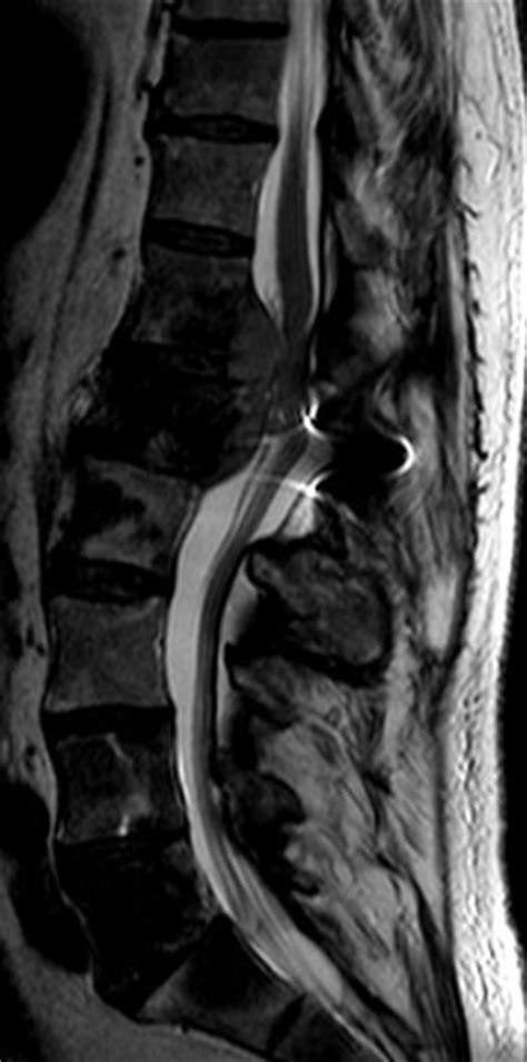 Prostata-Ca: Metastasen