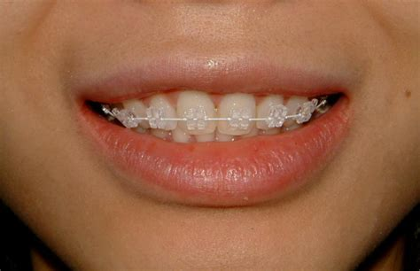 braces colors that make teeth look whiter vu orthodontics services