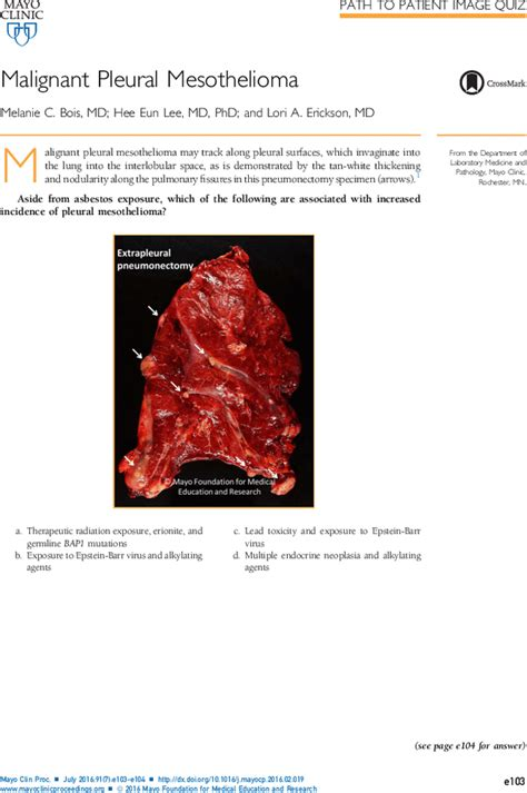 mesothelioma mayo malignant pleural mesothelioma mayo clinic proceedings