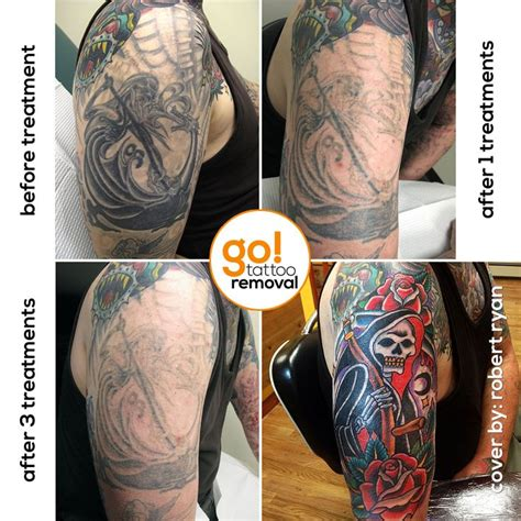 82 best images about tattoo removal to tattoo cover up on