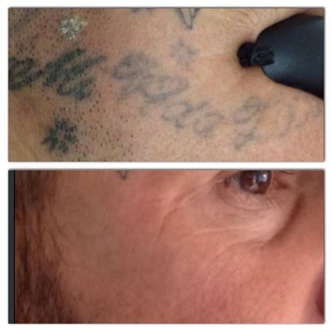 tattoo removal kingston details for kingston ink laser tattoo removal in 37