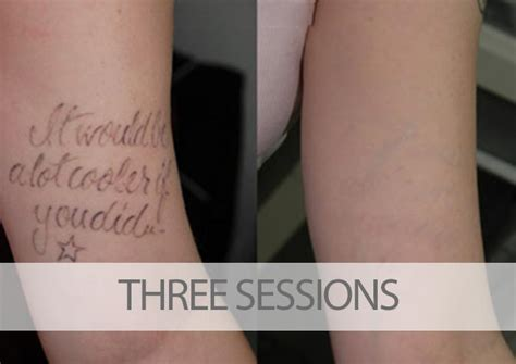 tattoo removal how many sessions removal before and after pictures tatt away