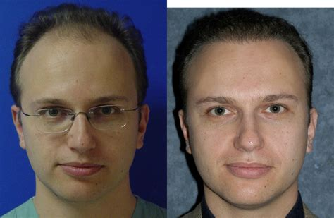 before and after photos of hair transplant surgery with an hair transplant before after 1 jesse e smith md facs