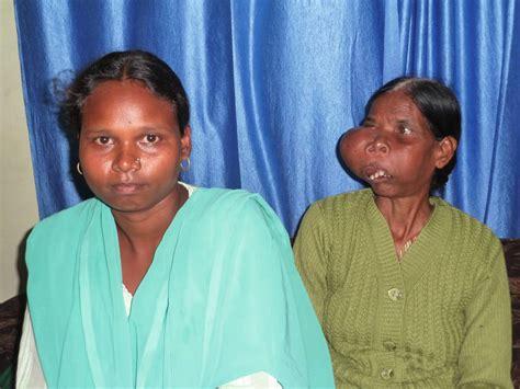 wann mandeln entfernen h 228 morrhoiden op wann eine operation bei h 228 morrhoiden