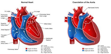 warden procedure diagram pictures info coarctation of the aorta