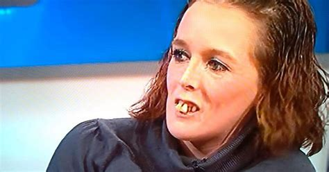 Buck Toothed Girl Meme - jeremy kyle s tooth lady has a new set of teeth and the