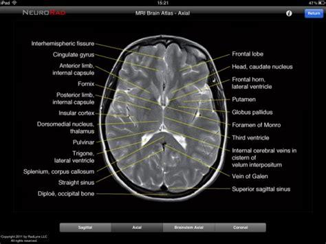 ct cross sectional anatomy ct brain anatomy images geoface 568a6ce5578e