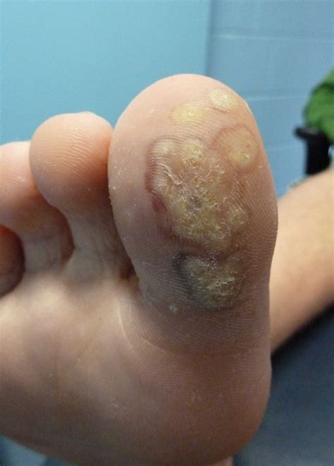 How You Get Planters Warts by Plantar Wart Pics Pictures Photos