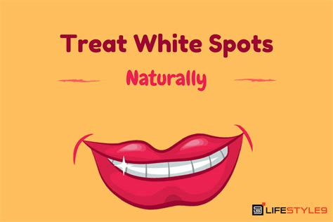 how to get rid of white bumps on the side of your tongue how to get rid of white spots on teeth