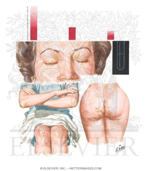 Fatty Deposits In Stool by Xanthomatosis Causes Symptoms Treatment Xanthomatosis
