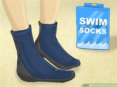 verruca sock boots simple ways to remove verrucas wikihow