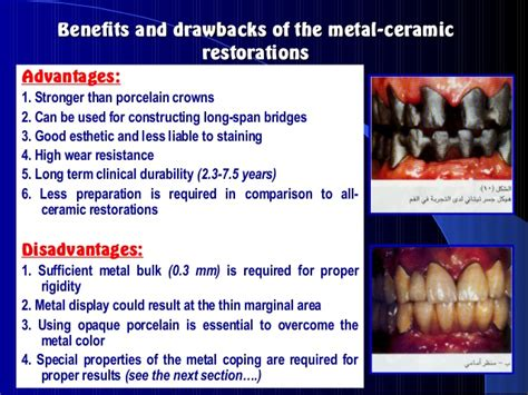 the advantages and disadvantages of using ceramic bathtubs dental ceramics dental porcelain all ceramic restorations