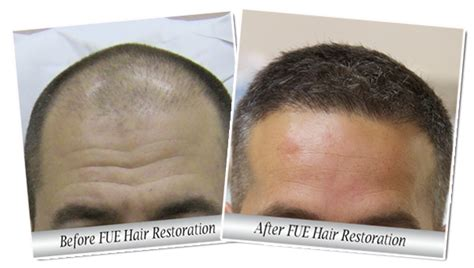 dr yates fue cost per graft fue hair transplant surgeon charlotte nc charleston