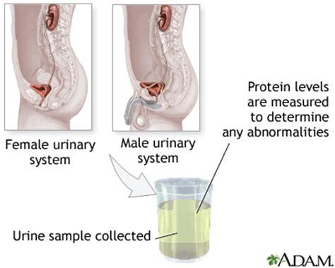 t protein in blood test protein urine test