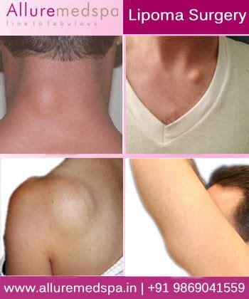 lipoma removal cost lipoma surgery lipoma surgery lipoma removal at medspa in mumbai