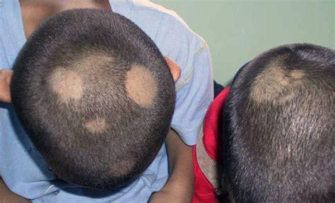 granos en el cuero cabelludo dermatologia enfermedades cuero cabelludo caida cabello