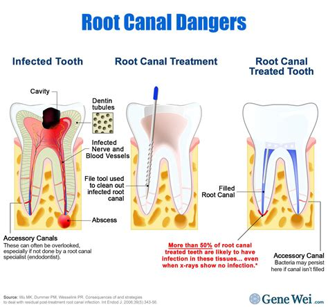 root canal diagram what you need to about root canals and cancer science