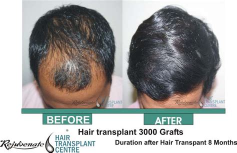 30000 hair graft cost rejuvenate hair transplant in indore hair transplant in