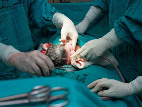 video of c section birth acog urges doctors to allow longer labor pushing stages