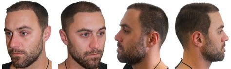 fue haircuts fue hair transplant surgeon melbourne dr m alam