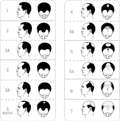 is hair loss pattern related to body mass index dht hormone hair loss how to stop dht hair loss
