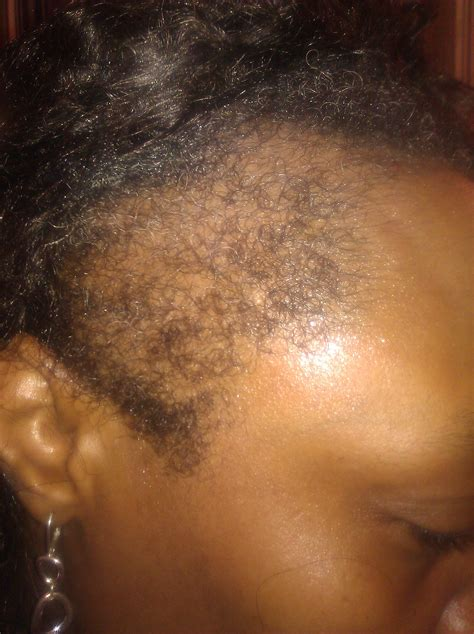 pics of women with no edges how i helped my mom regrow her edges in 5 months bglh