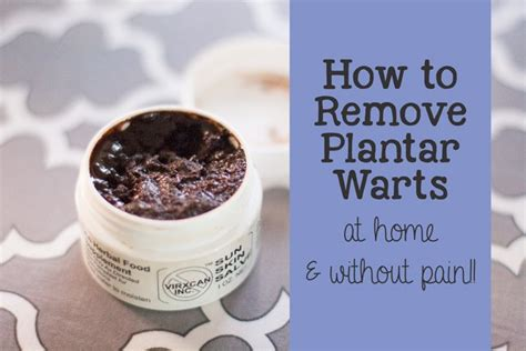 how to remove a plantar wart home remedy