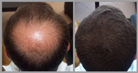 100 natural cover bald head by caboki hair fibers hyderabad fixplant hair loss concealer natural looking fibers 25g