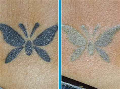 is tattoo removal safe are home removal methods safe