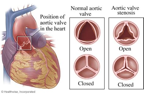 aortic stenosis diagram aortic valve with stenosis