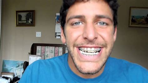 try jaw night before double jaw surgery youtube