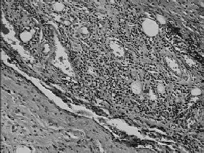 cytology report sle scientific publications