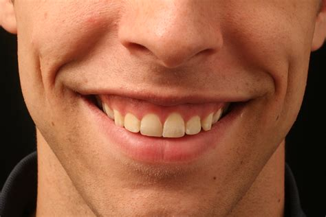 gummy smile advanced dermatology