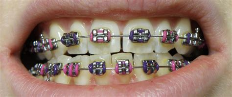 with braces brace yourself braces for adults bayshore dentistry
