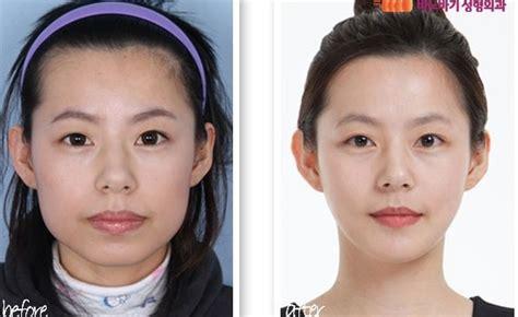 plastic surgery photos wrong korea blogs